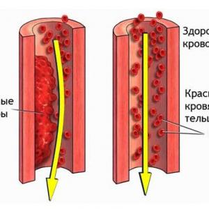 Настойка препятствует образованию тромбов